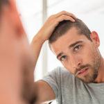 COVID-19 Hair Loss
